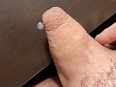 Terminated tight-fisted foreskin cum